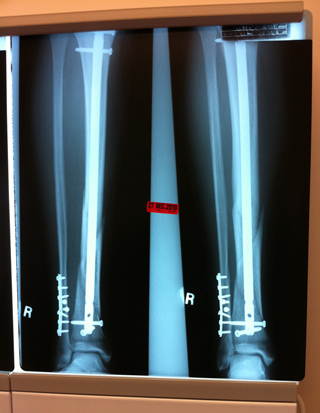 X-ray of my right leg